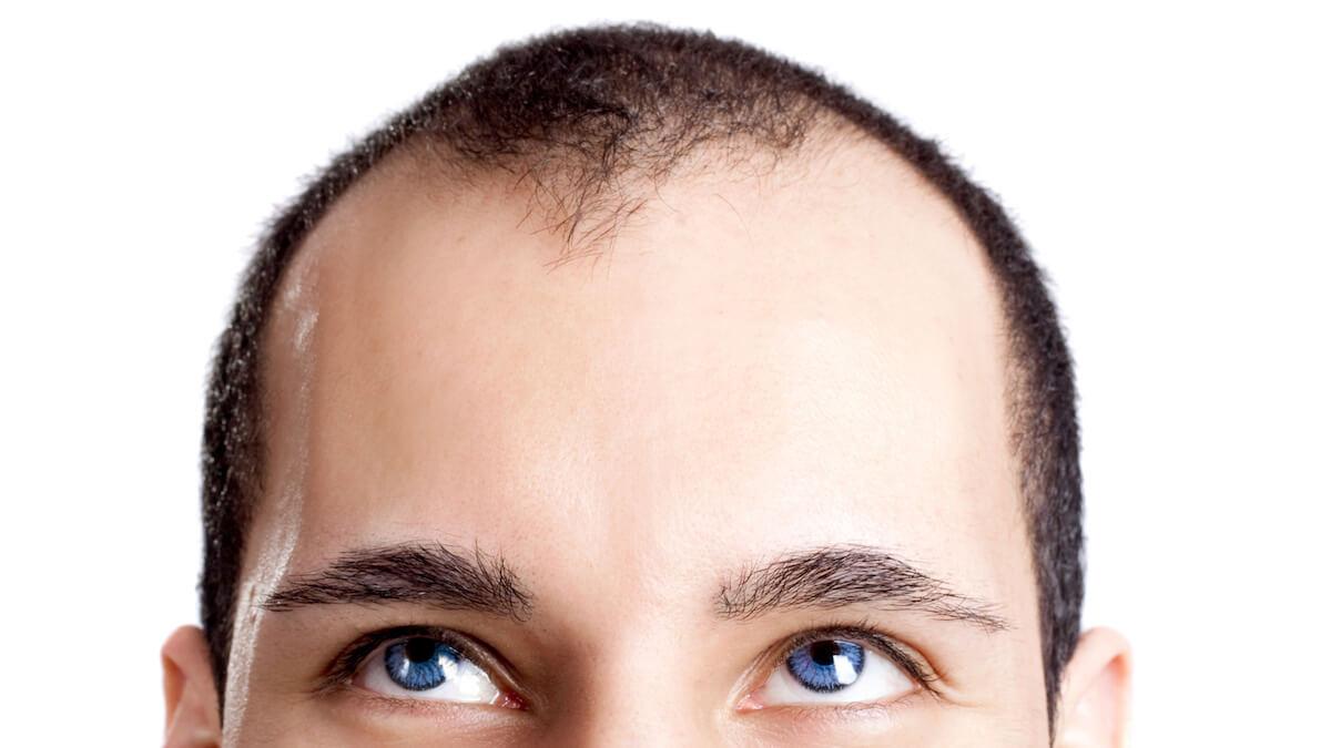 ボディソープで頭や髪を洗うとどうなる